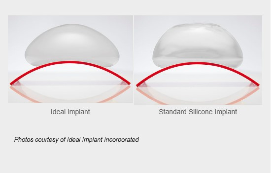 Side view of Ideal Implant beside standard silicone implant showing similar shape