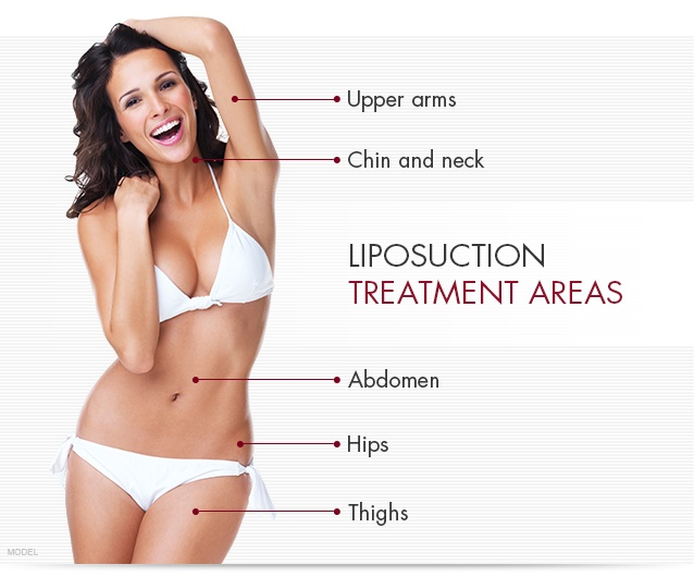 Liposuction treatment areas for the upper arms, chin and neck, abdomen, hips, and thighs