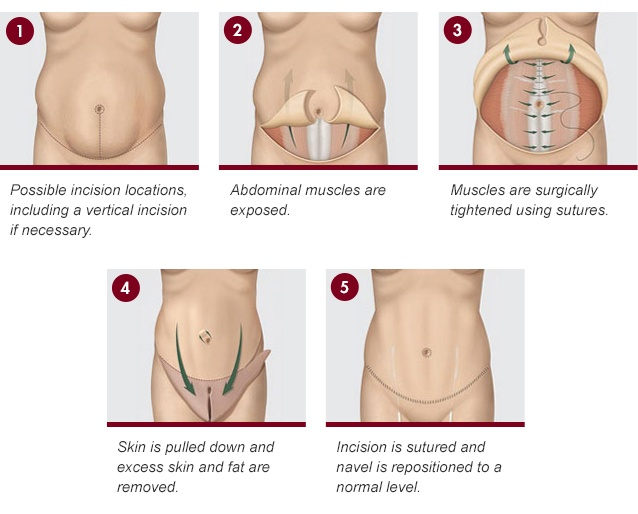 Diagram of the steps when undergoing a tummy tuck surgery